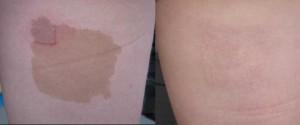 Café au lait macula voor en na laserbehandeling