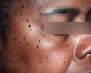 Dermatosis papulosa nigra