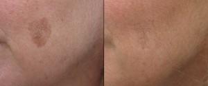Lentigo benigna voor en na laserbehandeling